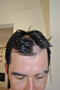 missing hair on my head
