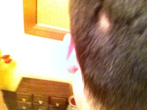 first patch of hair loss