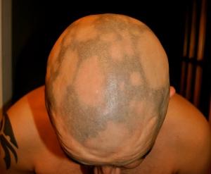 My head with alopecia