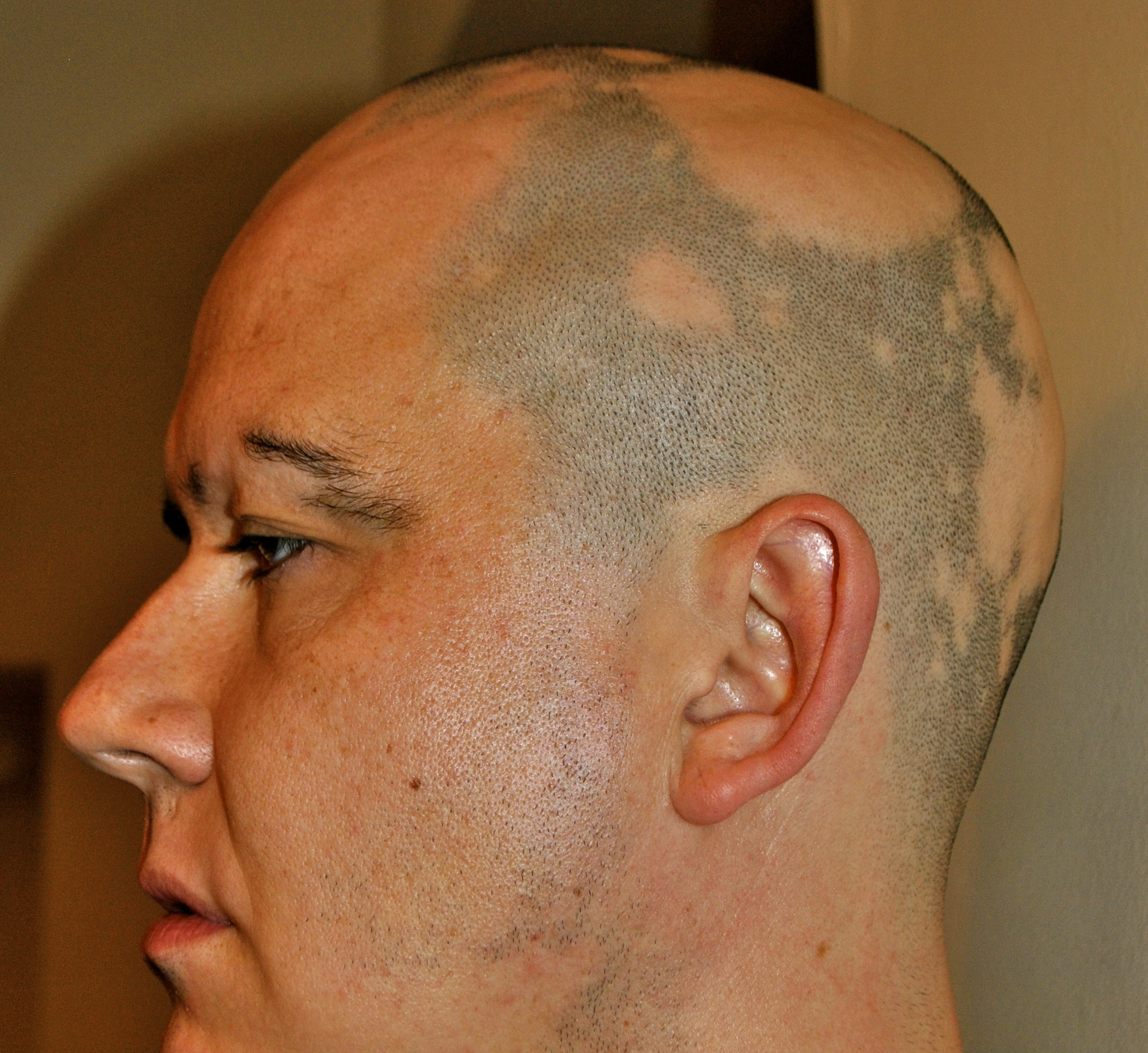 Alopecia Images & Stock Pictures. Royalty Free Alopecia ...