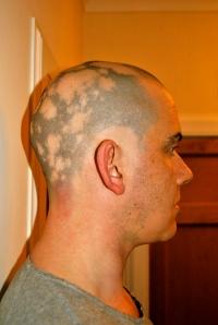 Alopecia head