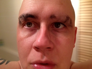 washed off alopecia eyebrows