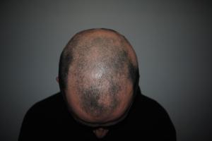 My head in January 2014