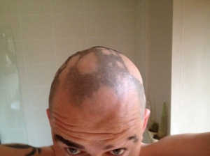 My head with alopecia