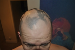 Alopecia as of January 2013