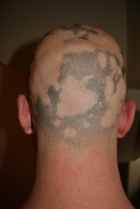 Alopecia hair May 2013