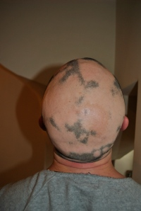 Alopecia hair May 2013