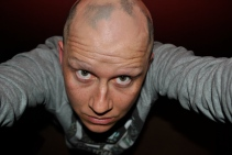 Alopecia hair July 2013