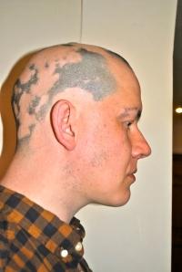 Alopecia hair February 2013
