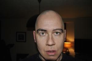 eyebrows alopecia