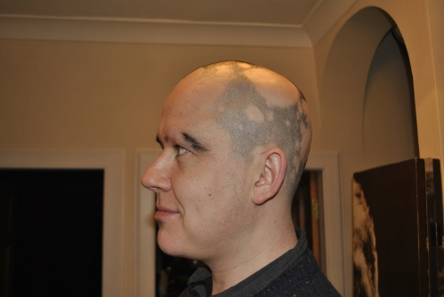 My Alopecia December 2012