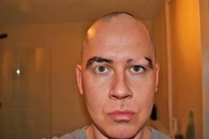 alopecia on an eyebrow