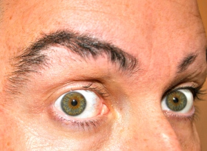 Alopecia Eyebrows and missing eyelashes