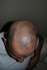 Alopecia regrowth November 2013