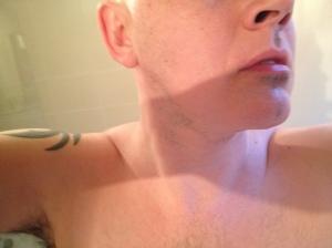 alopecia facial hair