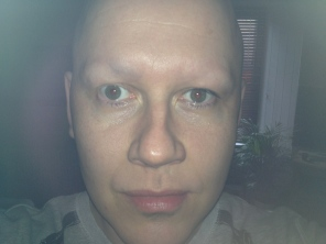 shaved eyebrows following alopecia