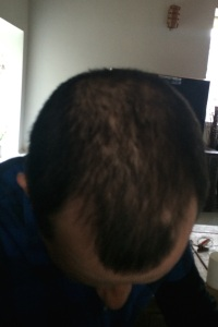 top of a head recpvering from alopecia areata