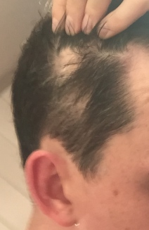 hair patches from Alopecia