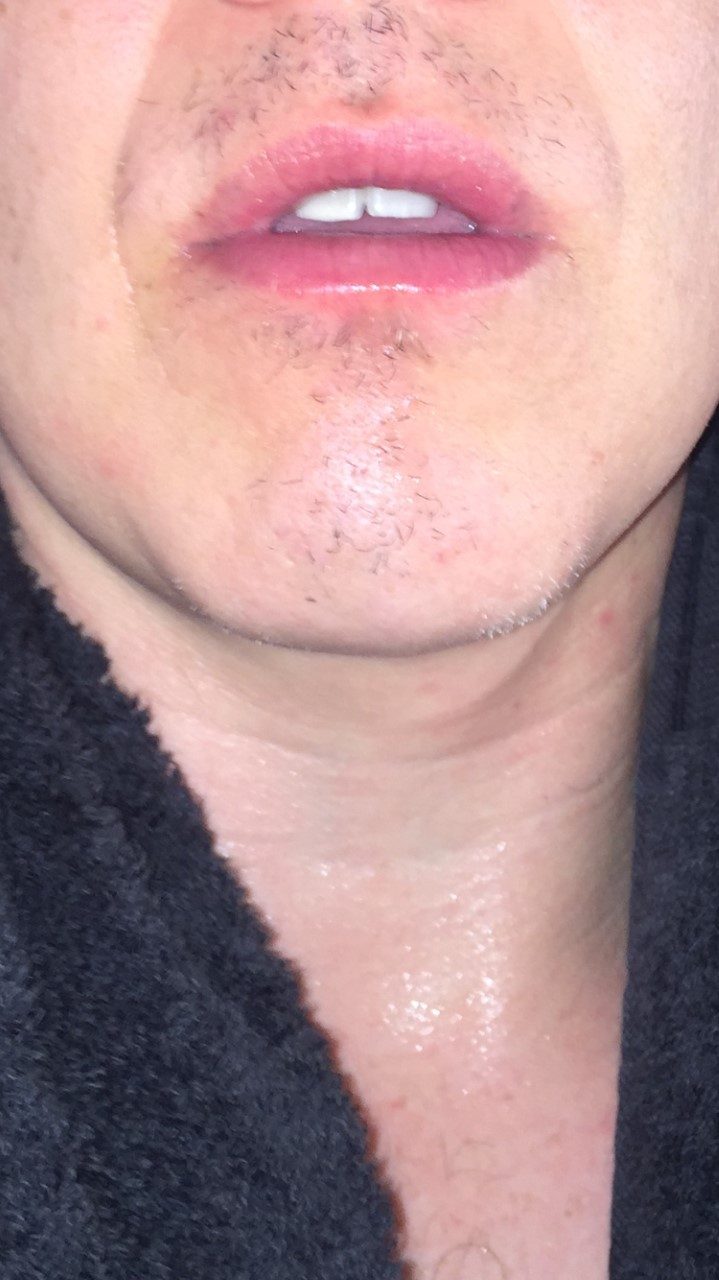 half moustache regrowth from alopecia