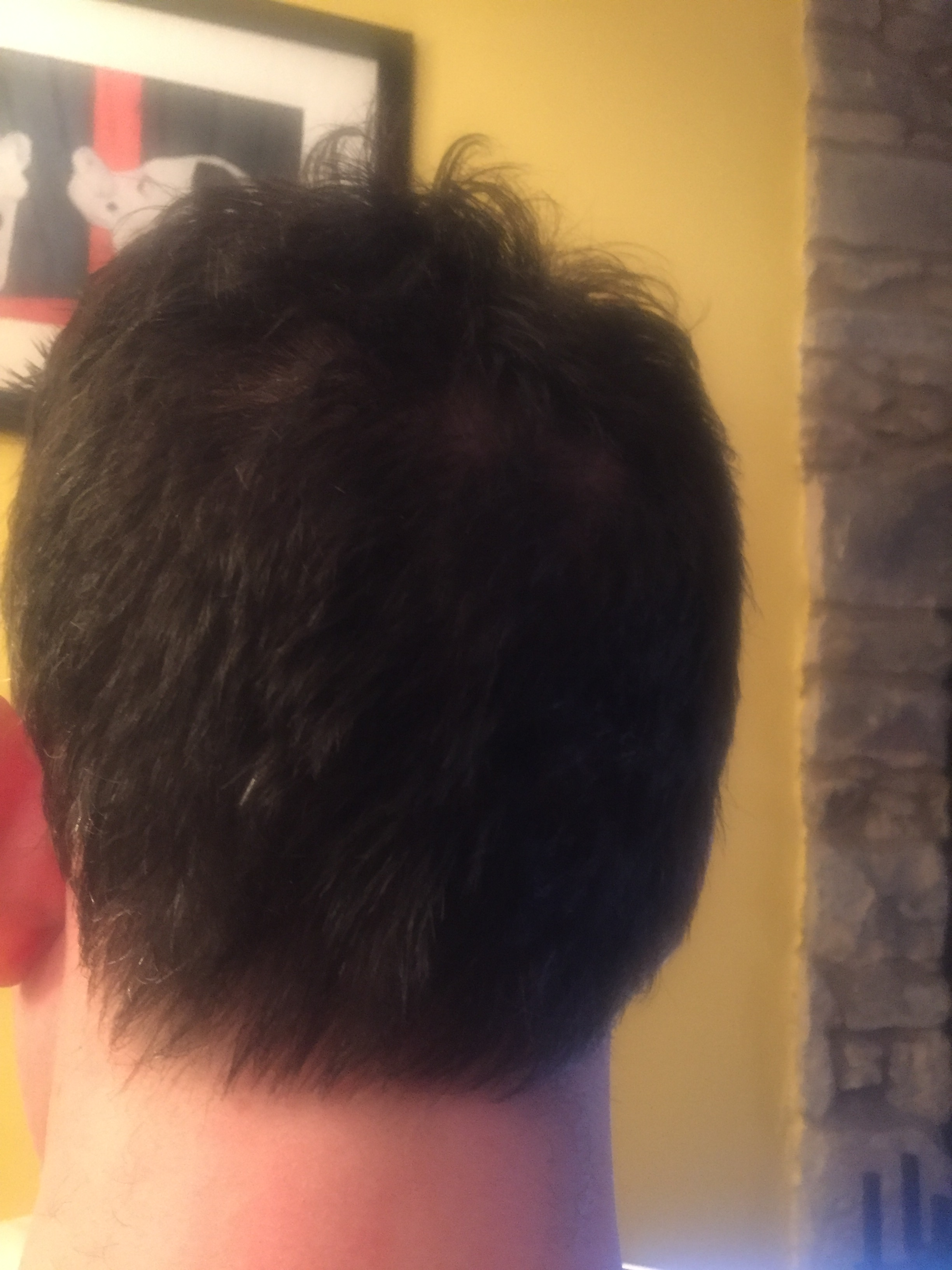 The back of my head January 2017